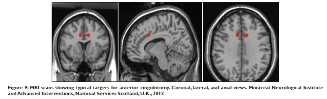 MRI scans showing typical targets for anterior cingulotomy