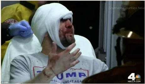 Injured Trump Supporter